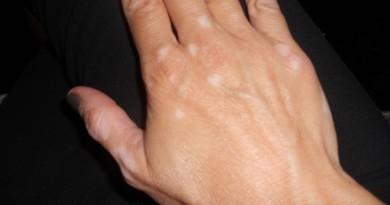 vivir-con-vitiligo-a-tu-salud
